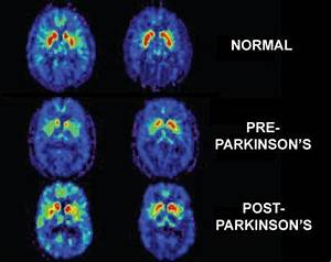 Parkinson U0026 39 S Disease News  Experiment Reveals Potency Of Ultrasound In Treatment Of Disease