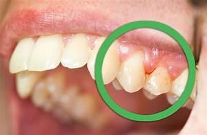 Dents Qui Se Déchaussent Photos : des rem des naturels pour les gencives et les dents am liore ta sant ~ Medecine-chirurgie-esthetiques.com Avis de Voitures
