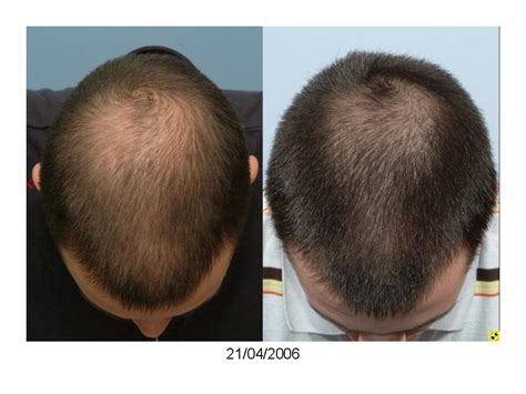 Hair Restoration Surgery without Medications? - Hair Loss