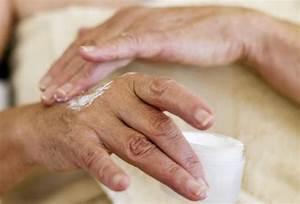 Чертов палец при псориазе
