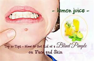 20 Tips How To Get Rid Of A Blind Pimple On Chin  Ear