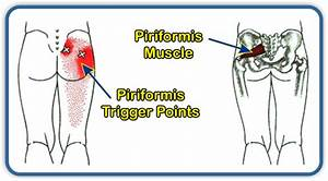 Sacroiliac Joint Pain Location Whiplash Pain Location ...