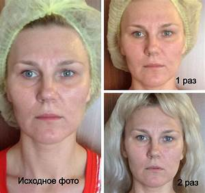 Массаж лица от морщин количество процедур