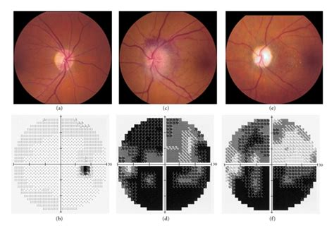 Nonarteritic Anterior Ischemic Optic Neuropathy (naion) In