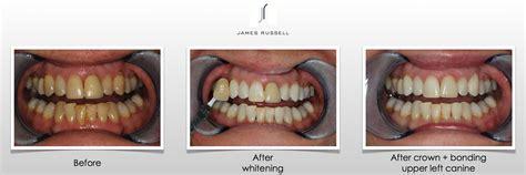 progressive dentistry teeth whitening cosmetic 100