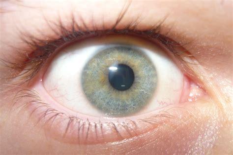 lights in eye file light blue eye with heterochromia jpg