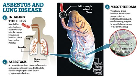 health effects  asbestos tasmania asbestos removal