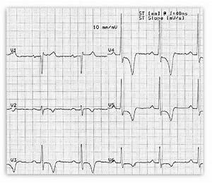 Ecg Displaying Negative T Waves In Anterolateral