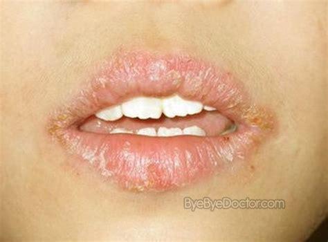lip balm nedir