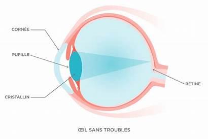 Myopie Essilor Presbyopia Vision Eye Lens