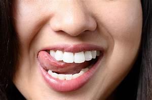 Embrasser Un Séropositif Avec La Langue : mycose la langue peut on l 39 attraper avec un baiser medisite ~ Medecine-chirurgie-esthetiques.com Avis de Voitures