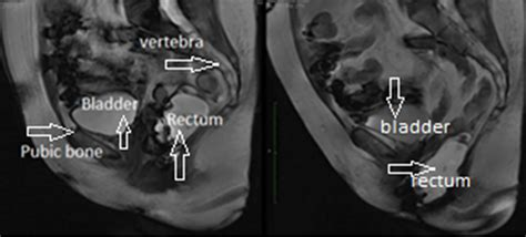 image based measurements for evaluation of pelvic organ