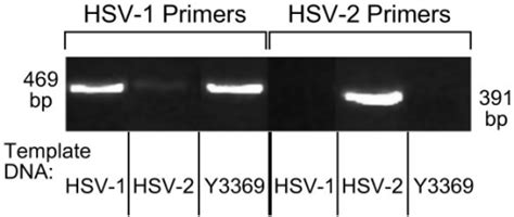 Isolate Y3369 Is An Hsv-1 Strain, Not An Hsv-2 Virus By