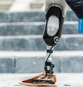 Amputees Control Bionic Legs With Their Thoughts