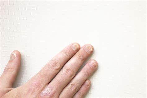 laengsrillen flecken  nagelkrankheiten erkennen