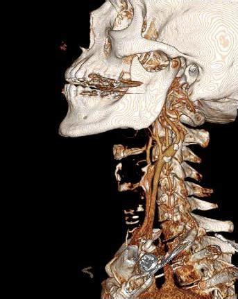 radiology imaging international society  head