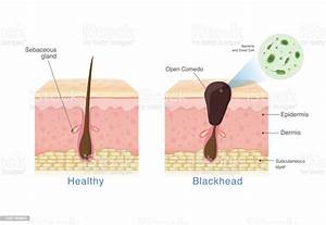 Bacteria In Blackhead With Human Skin Layer Structure And