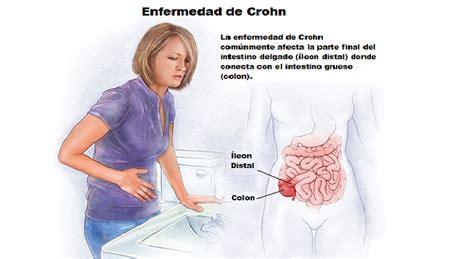 tratamiento  la enfermedad de crohn