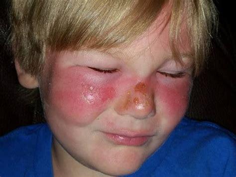 Banana Boat Sunscreen Rash by Banana Boat Warning Mum Posts Shocking Pictures Lismore