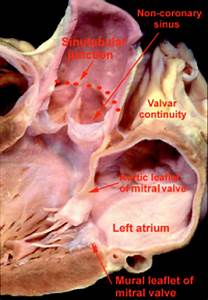 Clinical Anatomy Of The Aortic Root