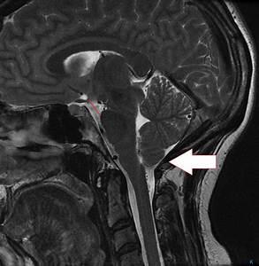 Cureus | Spontaneous Intracranial Hypotension Presenting ...