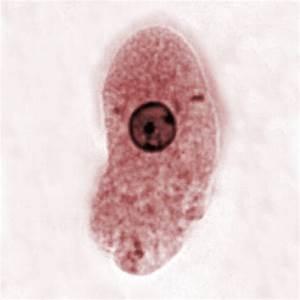 File:Entamoeba histolytica 00468.jpg - Wikimedia Commons