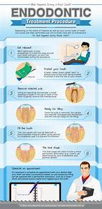 Life As Five  The Truth About Root Canal Therapy