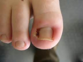 Home Remedies For Ingrown Toenail