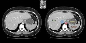 Radiology Basics