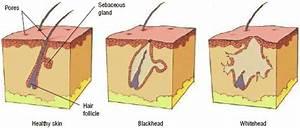 Hair Dead Skin Cells