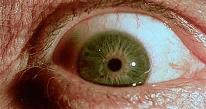 Pupil Dilation Matching