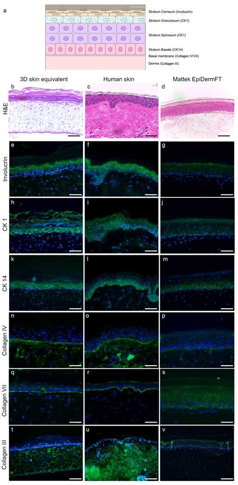 expression  epidermal dermal  basement membrane