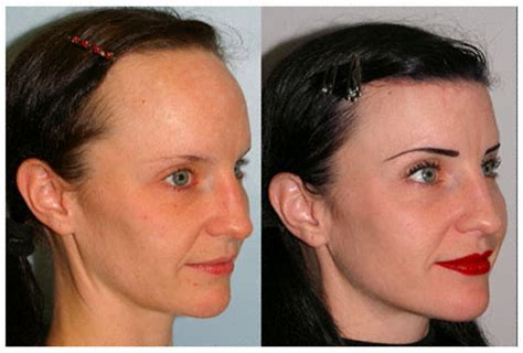 Hair Implants Oakland Tx 78951 Hair Loss Remedy For Hair Loss