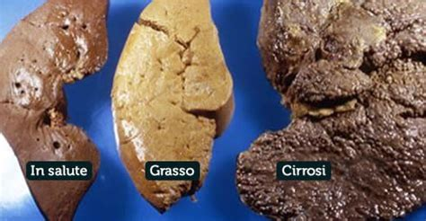 alimentazione fegato grasso prevenire il fegato grasso mai saltare pasti e no ad
