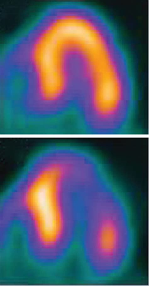 imaging stress tests  clearer view   hearts