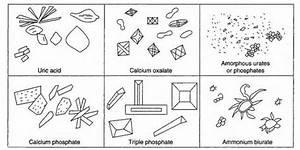 Calcium Carbonate Crystals Urine Sediment