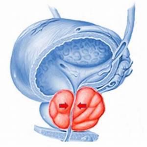 Народные рецепты лечения аденомы предстательной железы