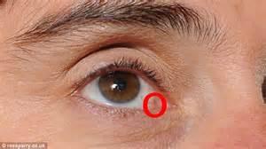 ... sun exposure can give you skin cancer on your EYEBALL - laurel blog Eye Cancer