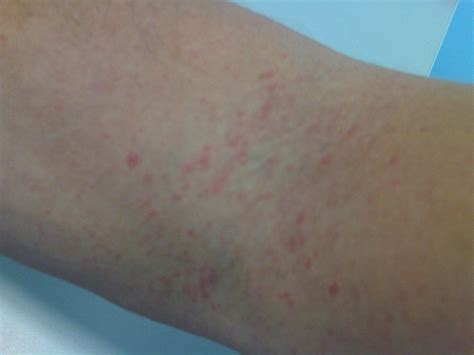 Image Gallery Itchy Rash On Arms
