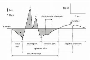 Motor Unit Action Potential Duration  Measurement And Significance