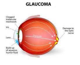 primary open angle glaucoma chronic glaucoma progresses very slowly ...  Glaucoma Eyes and Vision