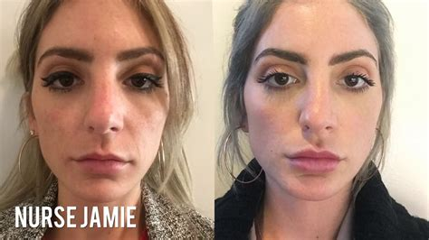 Before and After Micro Needling | Nurse Jamie - YouTube