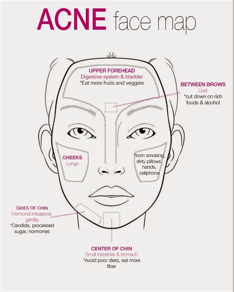 face mapping  acne  ultimate guide
