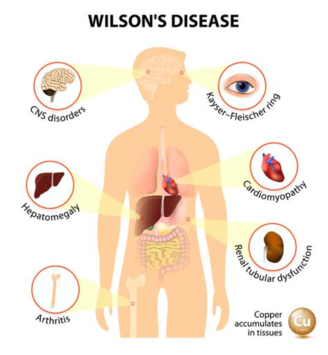 Wilson disease - Genetics Home Reference - NIH