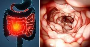 Crohn U0026 39 S Disease  Symptoms  Causes  Diagnosis And Treatment