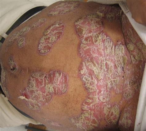 psoriasis dermatology advisor