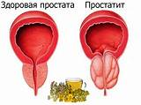 Лечение хронического простатита простамолом