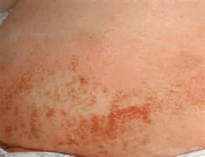 Dust Mites Allergy Skin allergy Allergy
