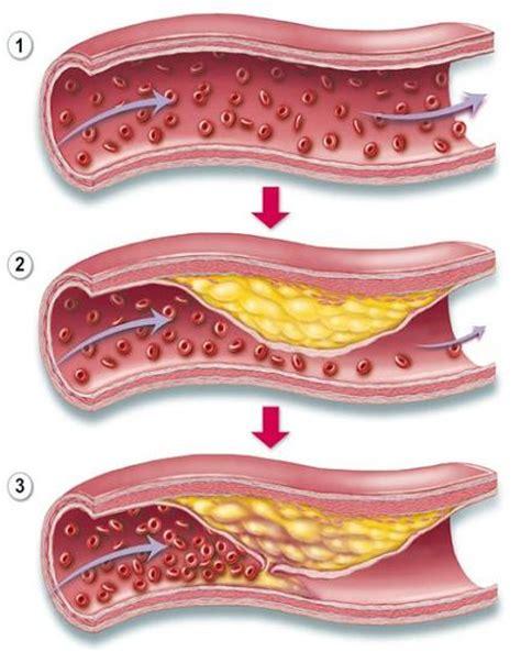 cuisine moleculaire tpe a le cholestérol