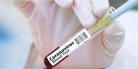 Videoflaneur july 20, 2021 uncategorized. Gesetzentwurf sieht keine Impfpflicht gegen Corona vor!